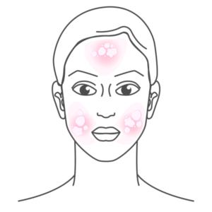 allergien-unvertraeglichkeiten-highdroxy-haeufige-hautbeschwerden