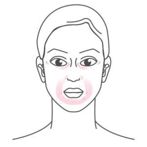 periorale-dermatitis-highdroxy-haeufige-hautbeschwerden